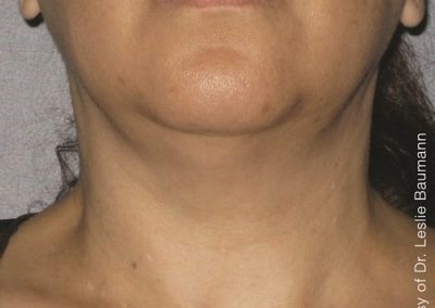 After Ultherapy Neck Treatment