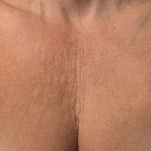 Before Ultherapy Decolletage