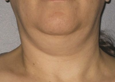 Before Ultherapy Neck Treatment