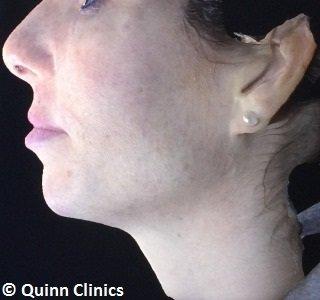 after-chin-augmentation-dermal-fillers