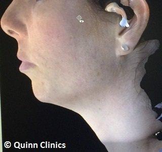 before chin augmentation dermal fillers