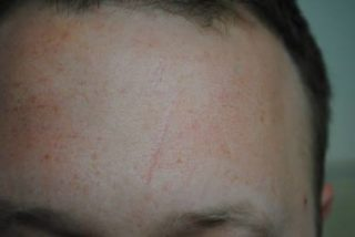 after scar treatment