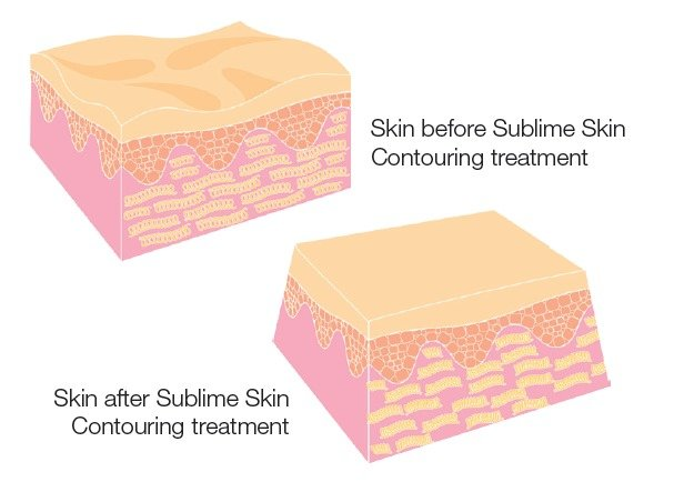 sublime skin diagram