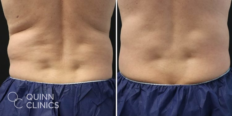 before and after male coolsculpting