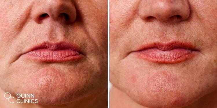 before and after dermal fillers Bristol