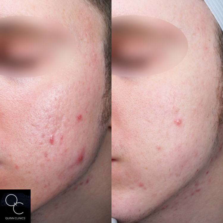 before and after acne scarring treatment