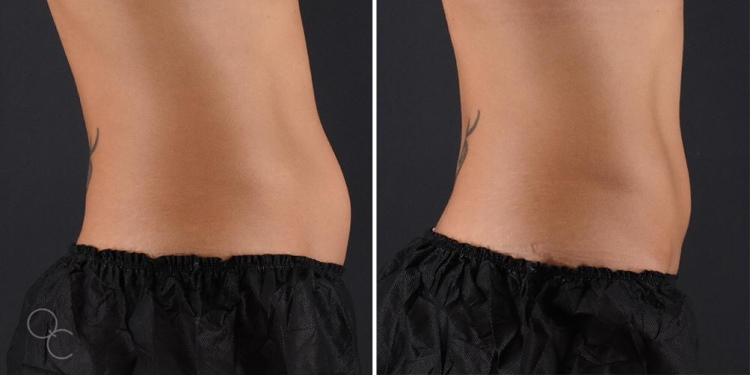 Exilis radiofrequency abdomen results after 4 sessions