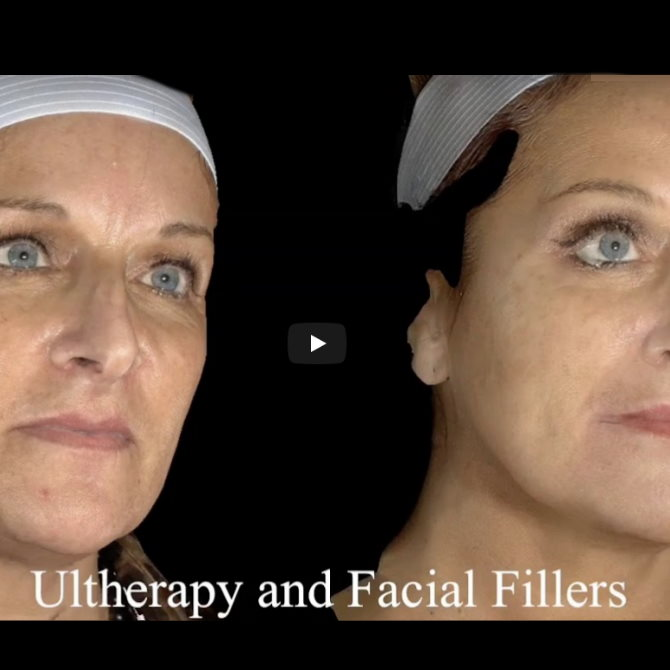 Treatments for Loose Skin and Sagging Jowls