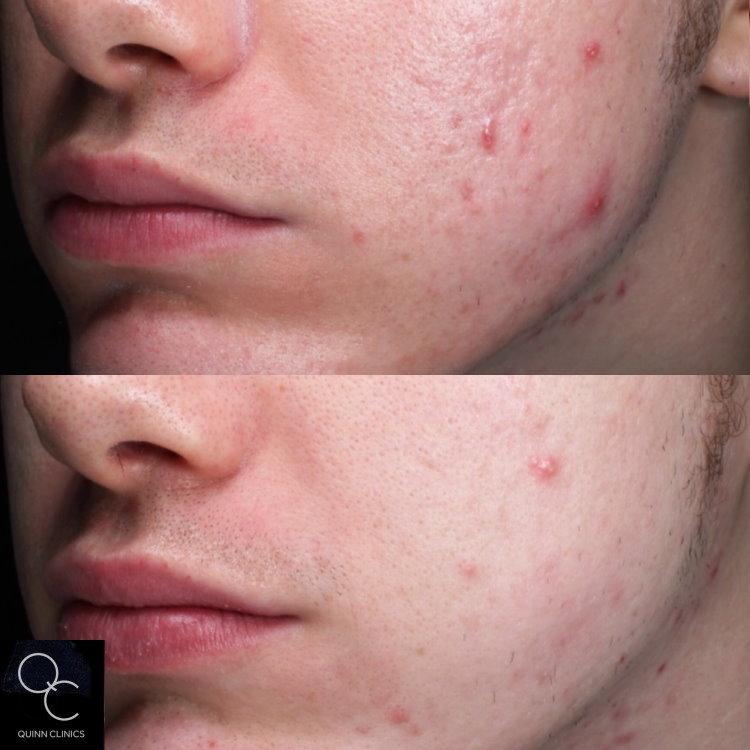 Resurfx acne treatment