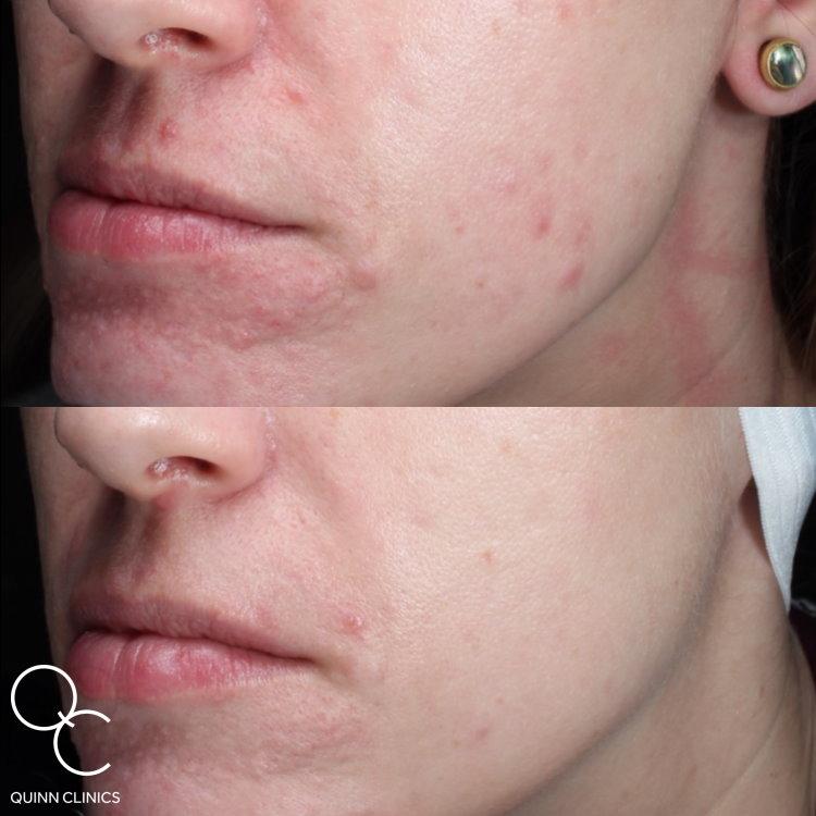 Resurfx skin blemishes