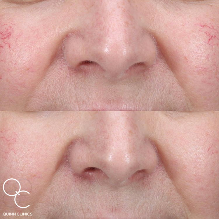 IPL facial veins before and after