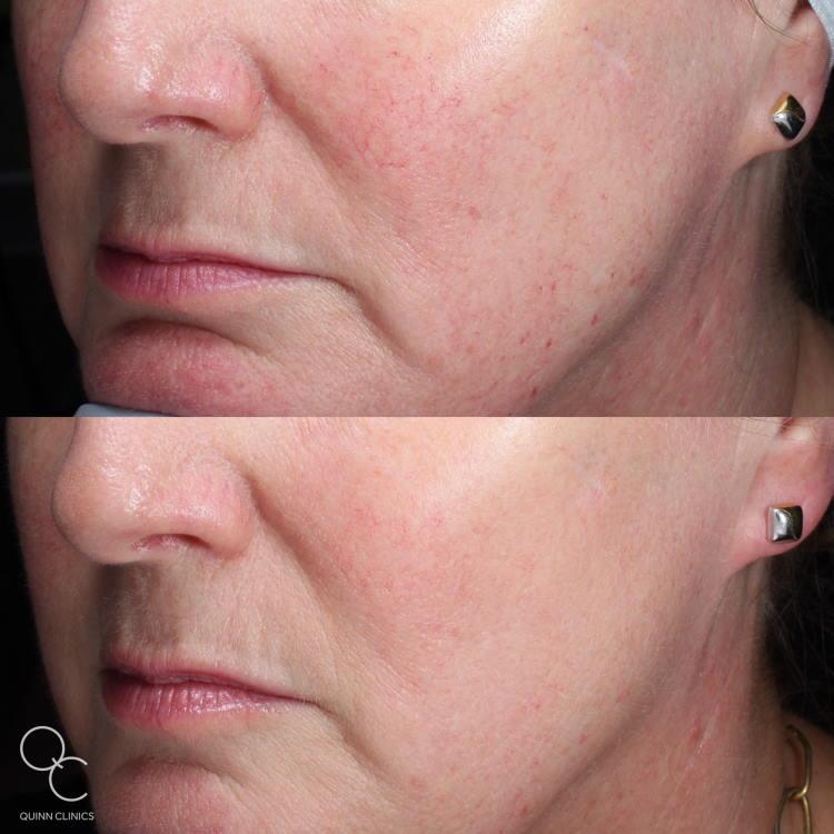 IPL for acne rosacea