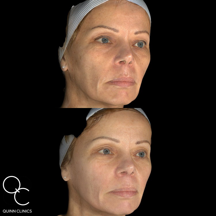 Ultherapy Results 1 year
