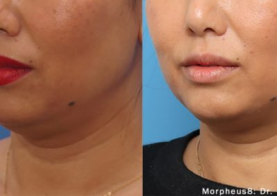 morpheus8 jawline results