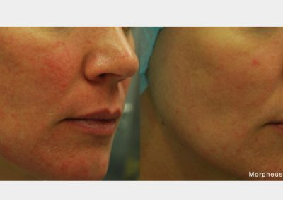 morpheus8 skin improvement