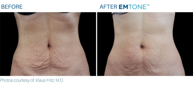 EMTONE abs results