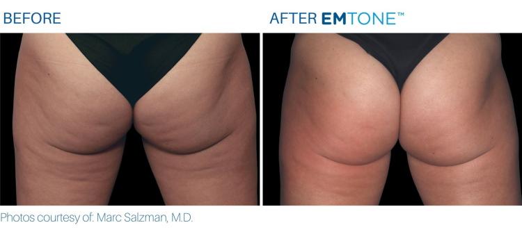 EMTONE buttocks results