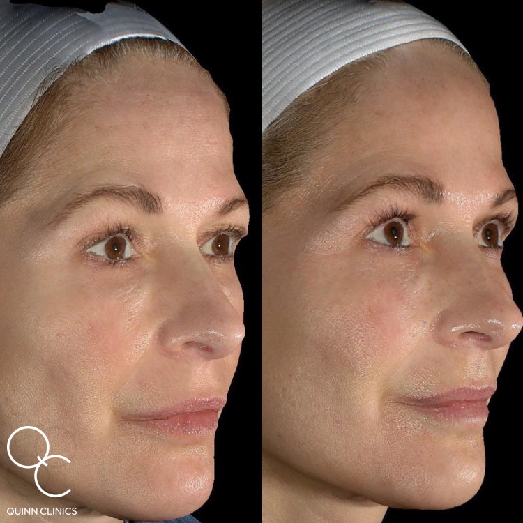 Morpheus8 Radiofrequency Microneedling Results