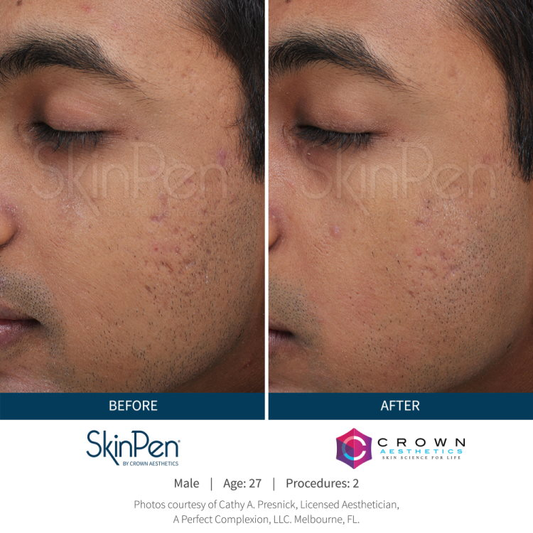 Before and after SkinPen male