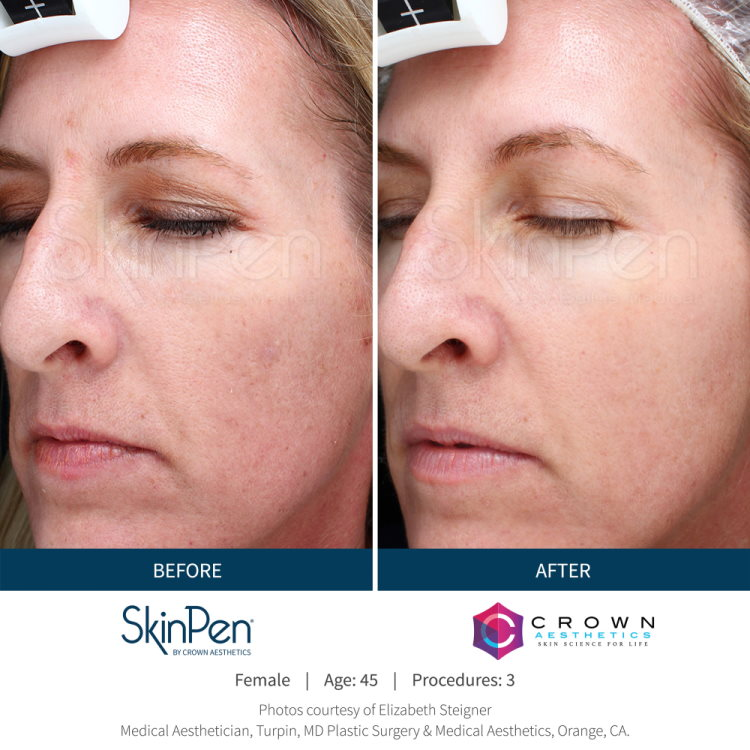Before and after SkinPen microneedling