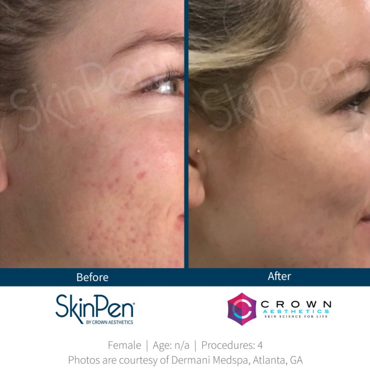 Before and after acne SkinPen microneedling