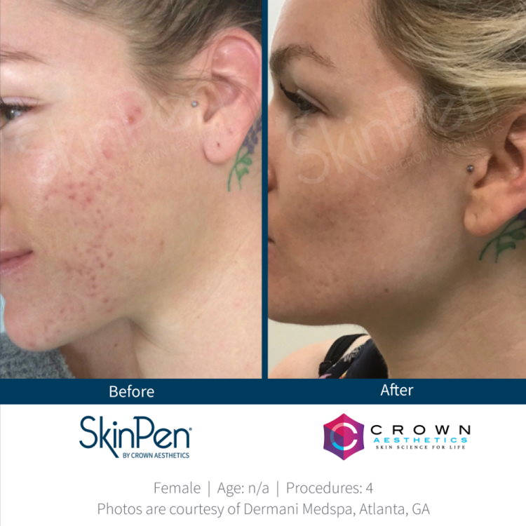 Open pores treatment results SkinPen microneedling