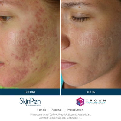 Before and after acne redness SkinPen microneedling