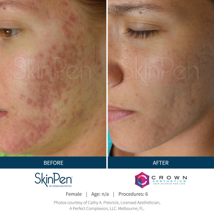 Before & After SkinPen Acne Treatment Results Photos