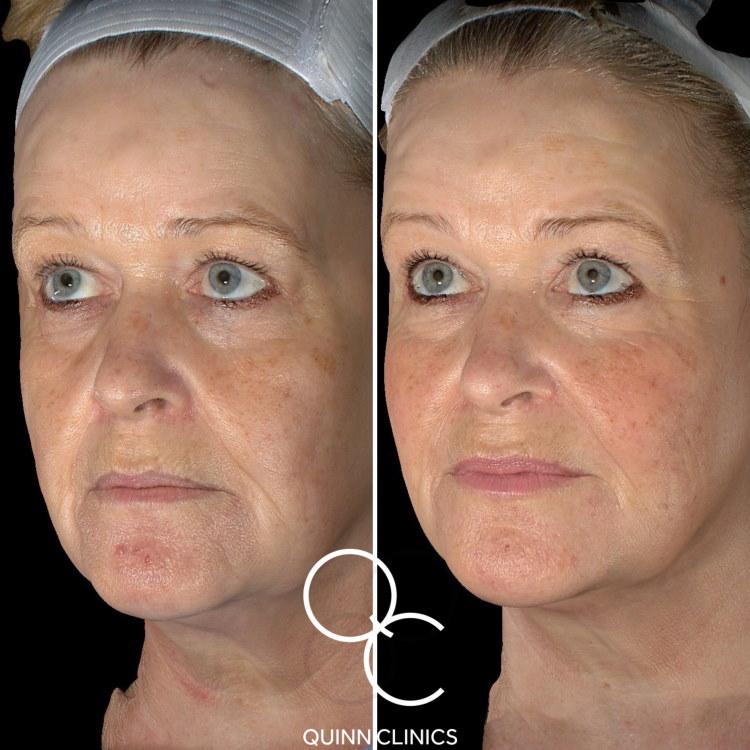Before & After Dermal Filler Face Lift Results