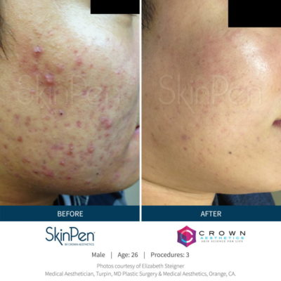 SkinPen acne microneedling treatment results