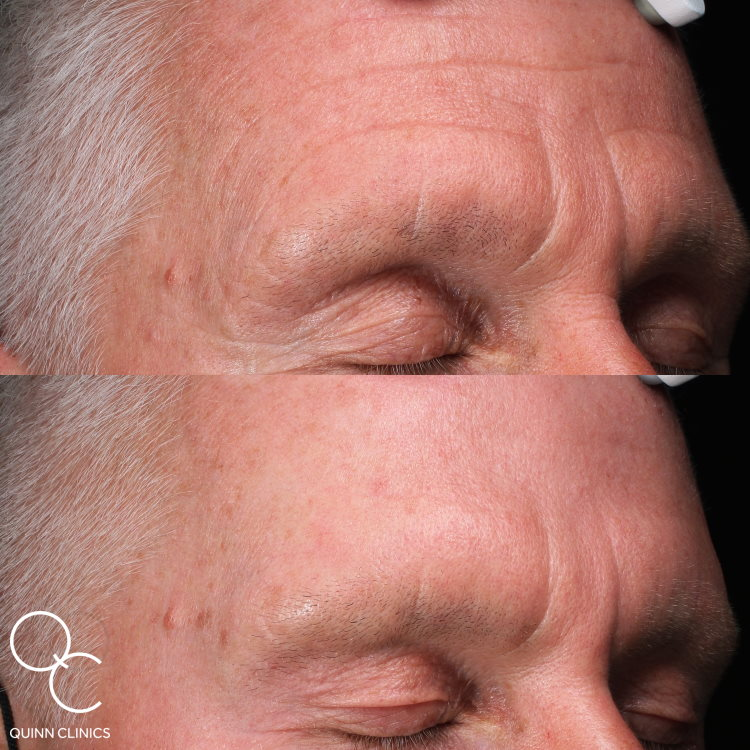 1 Year Later – Male BOTOX® Before & After Results
